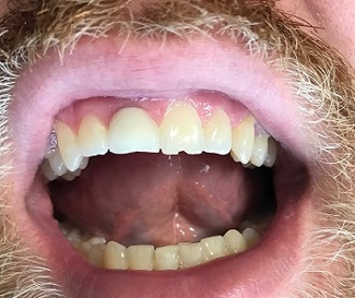 Chipped front tooth